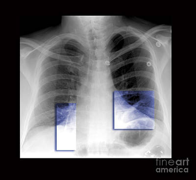 Photograph - Atelectasis Of Lung by Living Art Enterprises