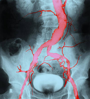 Photograph - Atheroma In Aorta And Iliac Arteries by John Watney