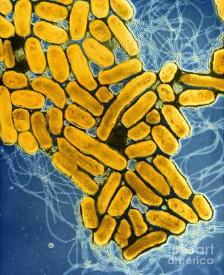 Photograph - B2200275 - Salmonella Enteritidis  by Spl