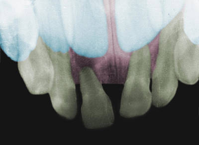 Photograph - Baby Teeth Behind Adult Teeth, X-ray by Science Stock Photography