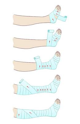 Bandage Photograph - Bandaging A Leg by Jeanette Engqvist