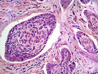 Basal Cell Carcinoma Art Print