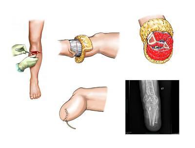 Below-knee Leg Amputation Art Print