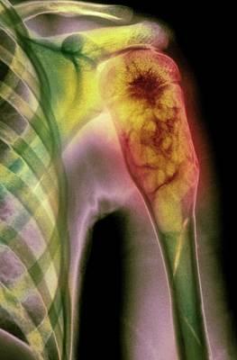 Benign Bone Cyst Art Print