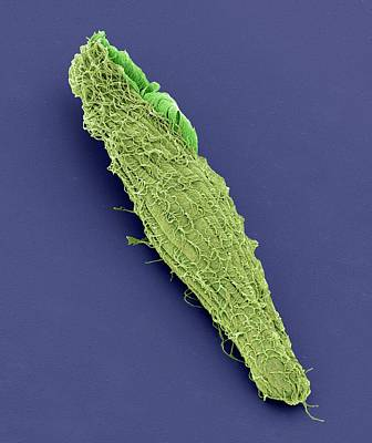 Blepharisma Ciliate Protozoan Print by Steve Gschmeissner