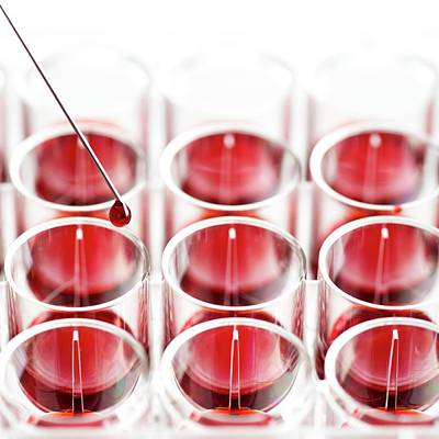 Blood Sample And Multiwell Tray Art Print by Science Photo Library