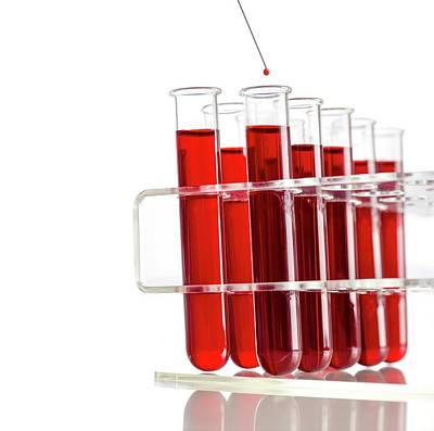 Blood Sample And Test Tubes Art Print