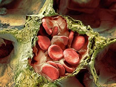 Blood Vessel And Alveoli In Lung Tissue Art Print by Microscopy Core Facility, Vib Gent