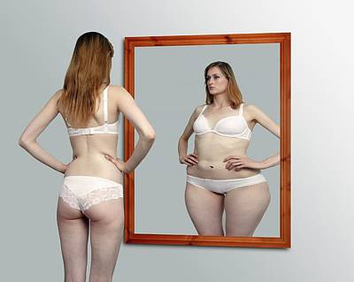Partial Nude Photograph - Body Dysmorphia by Victor De Schwanberg