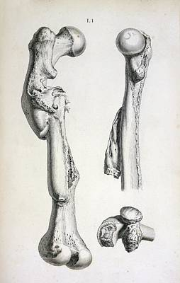Bone Deformities Art Print by British Library