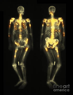 Photograph - Bone Scan Showing Multiple Metastases by Scott Camazine