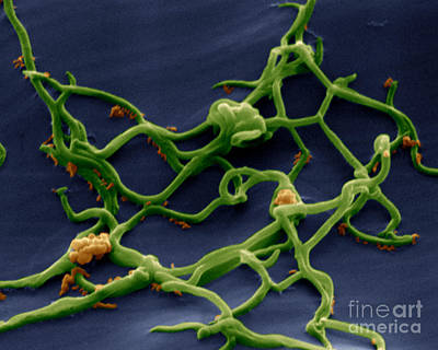 Photograph - Borrelia Burgdorferi by Eye of Science