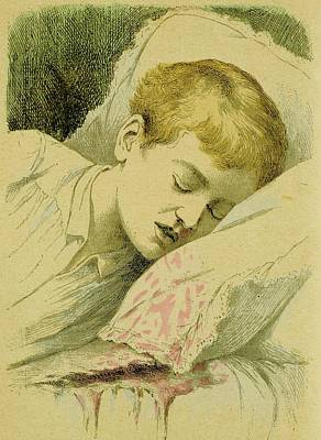 Boy With Haemophilia Art Print by Universal History Archive/uig