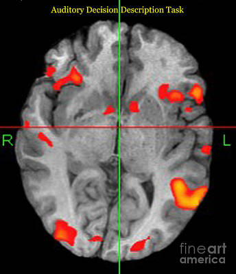 Brain Activity During Language Task, 2 Art Print
