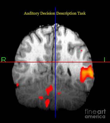 Brain Activity During Language Task, 3 Art Print