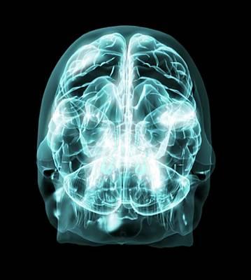 Brain Anatomy Art Print by Thierry Berrod, Mona Lisa Production/ Science Photo Library