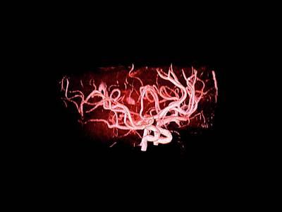 Brain Arteries Art Print