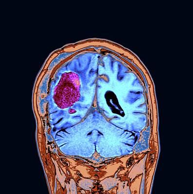 Brain Cancer After Surgery Art Print