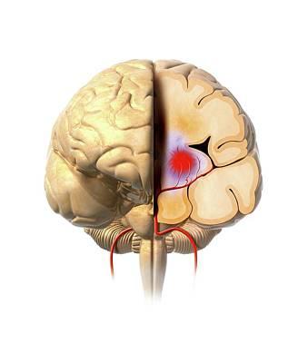 Neuroscience Photograph - Brain Haemorrhage by Claus Lunau