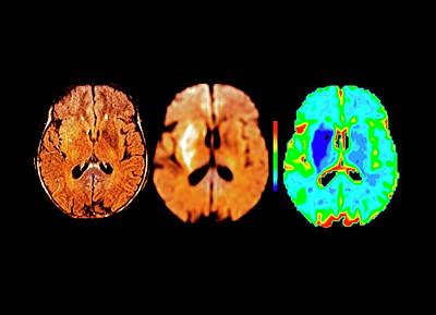 False-colored Photograph - Brain In Ischemic Stroke by Zephyr