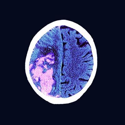 80 Photograph - Brain In Stroke by Dr P. Marazzi