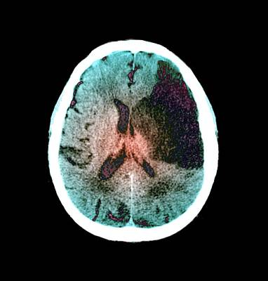 False-colored Photograph - Brain In Stroke by Zephyr