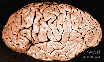 Discrimination Photograph - Brain Of Helen Hamilton Gardener by Science Source