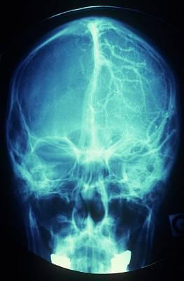 Brain's Blood Supply Art Print by Alain Pol - Cnri