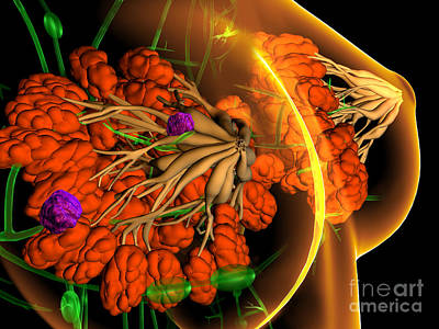 Photograph - Breast Cancer Illustration by Fernando Da Cunha