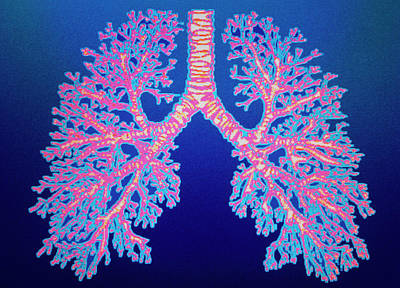 Bronchial Tree Of Lungs Art Print