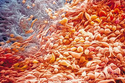Cancer Cells Art Print by Ralph C. Eagle Jr.