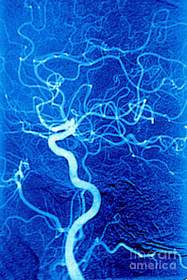 Photograph - Carotid Angiography by James Cavallini