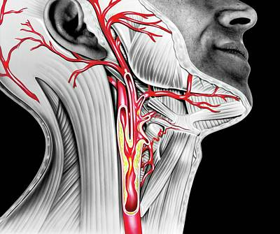 Carotid Atherosclerosis Print by John Bavosi