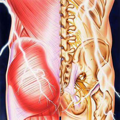 Back Injury Photograph - Causes Of Backache And Pain by John Bavosi