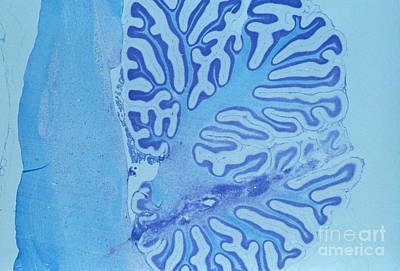 Rem Photograph - Cerebellum And Brain Stem by J. Allan Hobson