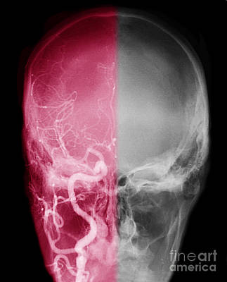 Photograph - Cerebral Angiogram by Scott Camazine