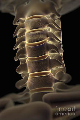 Photograph - Cervical Spine by Science Picture Co