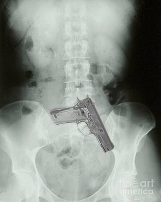 Chest X-ray Showing Hidden Gun Art Print by Scott Camazine