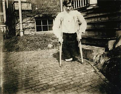 Child Labor, Frank, Whose Legs Were Cut Art Print by Everett