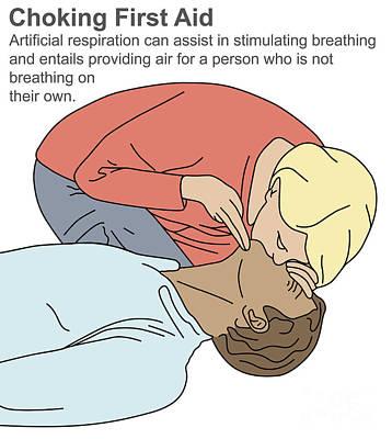 Choking First Aid Art Print