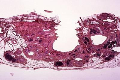 Chronic Pancreatitis Art Print by Cnri