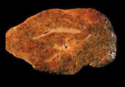 Fibrous Photograph - Cirrhosis Of The Liver by Cnri