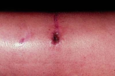 Rottweiler Wall Art - Photograph - Close Up Of Infected Rottweiler Bite On Adult Shin by Dr P. Marazzi/science Photo Library