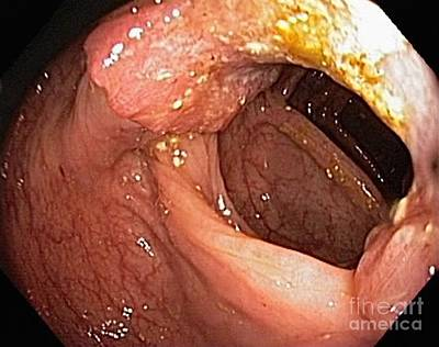 Inflamed Wall Photograph - Colon Cancer, Endoscopic View by Gastrolab