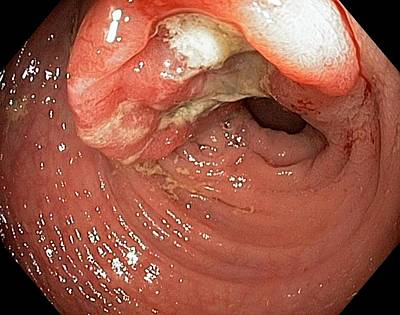 Endoscopy Photograph - Colon Cancer by Gastrolab