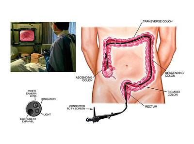 Sigmoid Colon Photograph - Colonoscopy Procedure by John T. Alesi