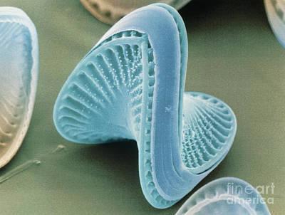 Colored Sem Of Diatoms, Campylodiscus Art Print