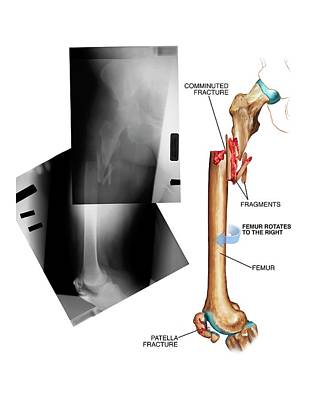 X-rays Of Photograph - Comminuted Fracture Of The Femur by John T. Alesi