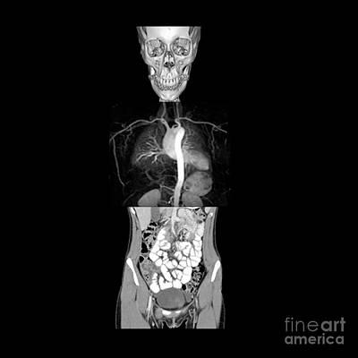 Reconstruction Photograph - Composite Image Of The Body by Living Art Enterprises