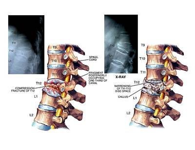 Back Injury Photograph - Compression Fracture Of Thoracic Vertebra by John T. Alesi